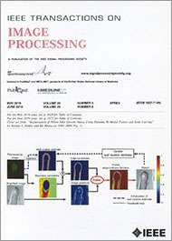 IEEE Transactions on Image Processing | IEEE Signal